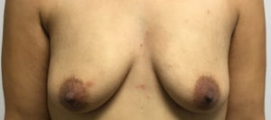 Breast Augmentation Before and After Pictures Houston, TX