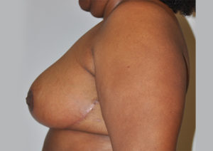 Breast Reduction Before and After Pictures Houston, TX