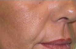 PRP Facelift Before and After Pictures Houston, TX