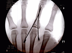 Hand Trauma Surgery Before and After Pictures Houston, TX