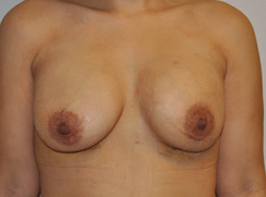 Breast Lift Before and After Pictures Houston, TX