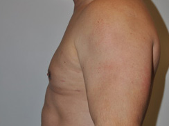 Gynecomastia Before and After Pictures Houston, TX