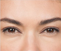 BOTOX® Cosmetic Before and After Pictures Houston, TX