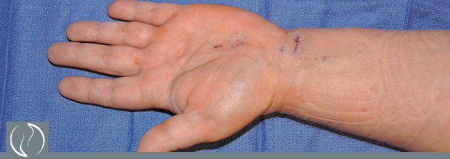 Carpel Tunnel Release Surgery Before and After Pictures Houston, TX