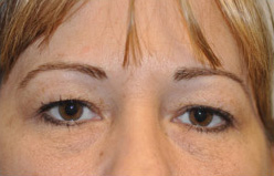 Blepharoplasty Before and After Pictures Houston, TX