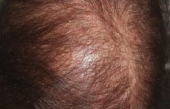 PRP Hair Loss Before and After Pictures Houston, TX