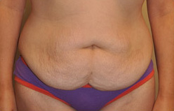 Tummy Tuck Before and After Pictures Houston, TX